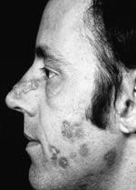 The Skin and Lupus - LUPUS UK