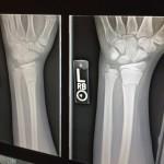 x-ray-1273382_1920