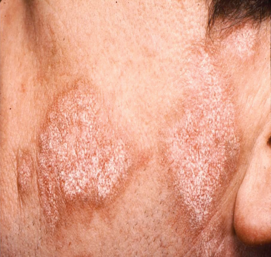 Nerve damage facial rash