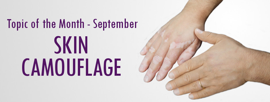 Lupus Rashes and Skin Camouflage Services- LUPUS UK