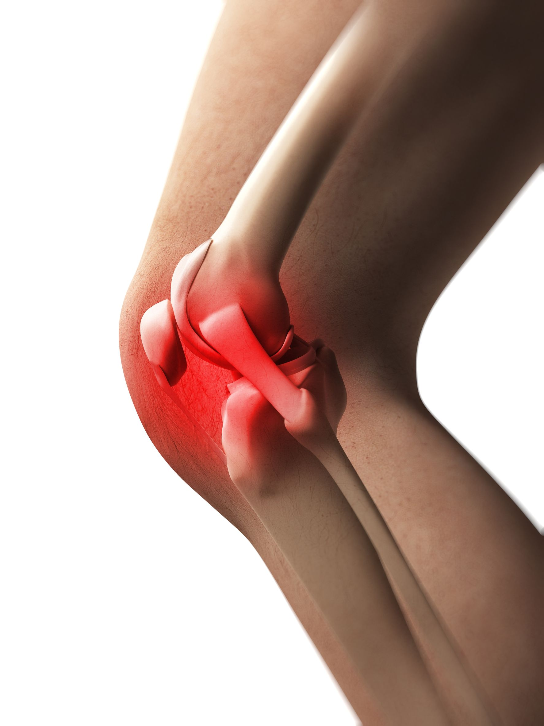 Pain management in lupus lupus uk 90 to 95 of people with lupus will experience muscle andor joint pain arthralgias are pains in the joints and myalgias are pains in the muscles solutioingenieria Choice Image