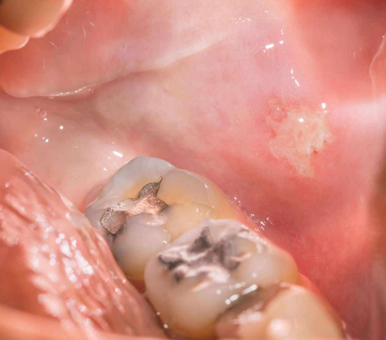 34651833 - closeup view of back tooth and sore, open mouth
