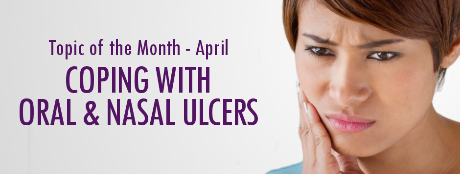 Coping with Oral and Nasal Ulcers in Lupus - LUPUS UK