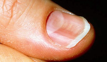 M1900072 Spooned Nails 342x198