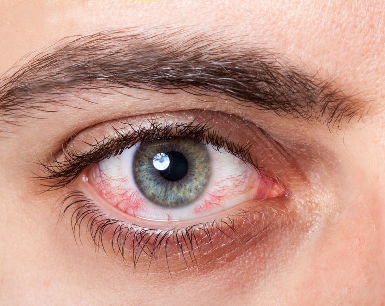 Coping with Dry Eyes and Dry Mouth - LUPUS UK